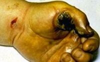 Entrance Wound to Worker's Hand from Burn From Hot Tool