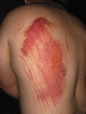 Road Rash Injury from Motorcycle Accident
